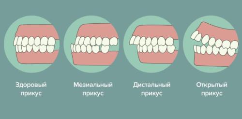 Разновидности дефектов прикуса