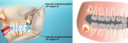 Удаление при неправильном прорезывании зуба мудрости