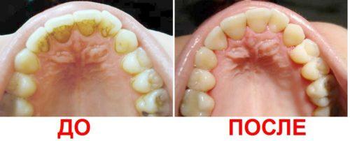 Удаление зубного камня: профилактика лечения кариеса