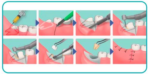 удаление зубов в стоматологии схема