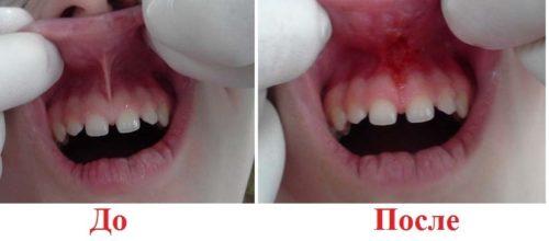 Дефект губной уздечки поддается хирургическому лечению