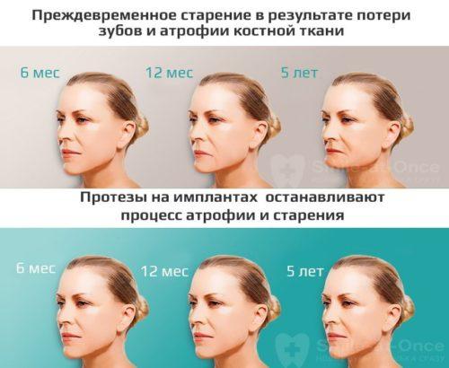 Имплантация помогает избежать раннего старения