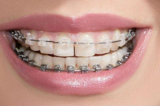 Керамические брекеты незаметны в зоне улыбки