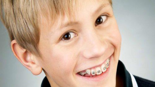 Современные детские брекеты эстетичные и безопасные