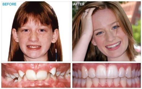 Исправление прикуса брекетами: фото до и после