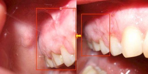 Лазерное удаление кисты фото до и после