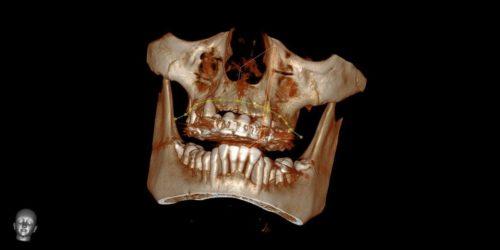 Компьютерная томография позволяет получить трехмерную модель зубов