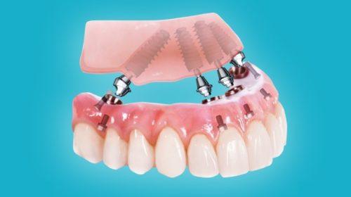 При невозможности осуществить полное протезирование имплантами, используют альтернативные протоколы