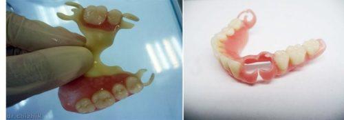 Новинка: зубной протез без металлических элементов и неба
