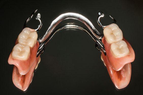 Частичное протезирование съемными конструкциями для боковых зубов
