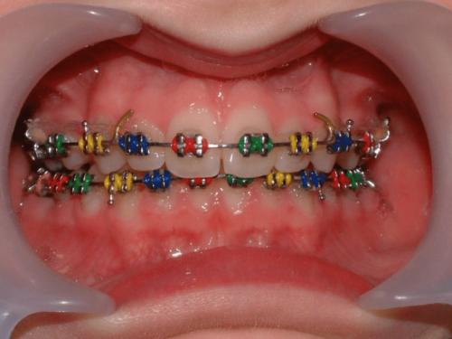 Красиво и безболезненно: брекеты для молочных зубов