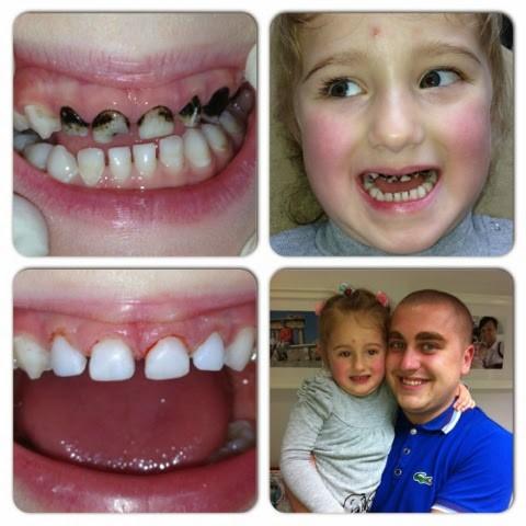 Восстановление молочных зубов в стоматологии