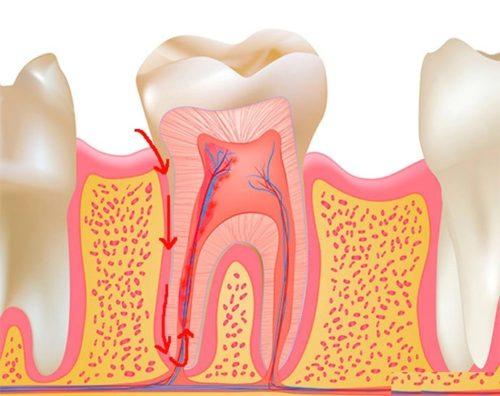 Этапы поражения зубных нервов