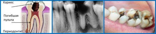 Внешний вид и снимок каналов зуба с периодонтитом