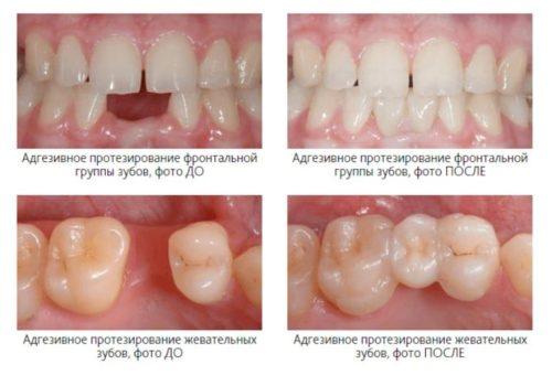 Фото до и после адгезивного протезирования зубов