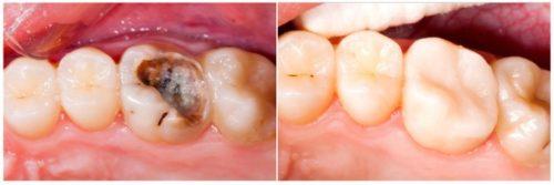 Фото до и после лечения гангренозного пульпита