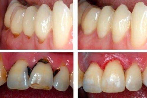 Фото до и после лечения кариеса передних зубов