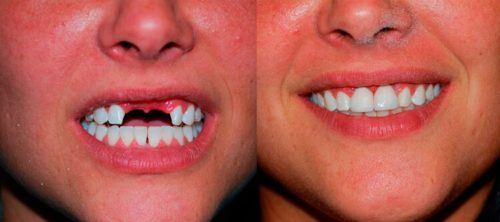 Частичные нейлоновые протезы фото до и после установки