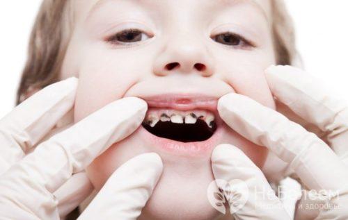 Фото зубов ребенка с глубоким кариесом