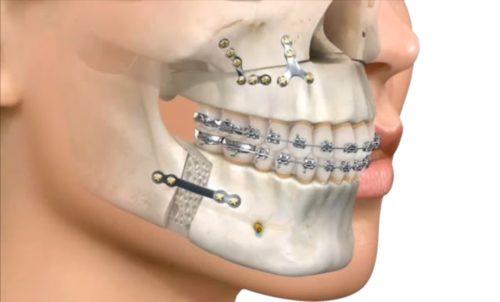 Хирургическое исправление прикуса