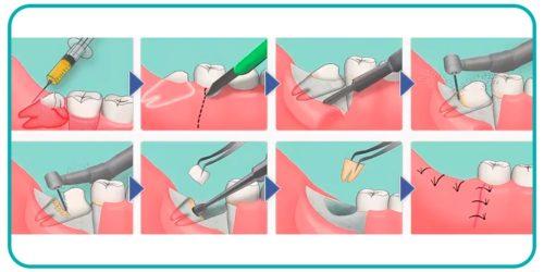 Удаление зубов мудрости с резекцией десны