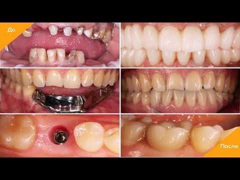 Имплантация зубов в рассрочку: фото до и после