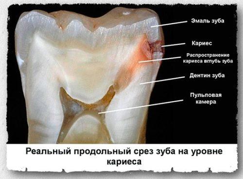 Причины развития пульпита на постоянных зубах