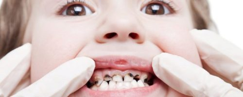 Кариес верхних молочных зубов фото