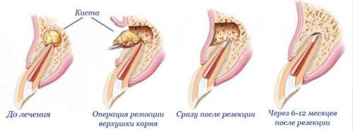 Киста корня зуба этапы лечения