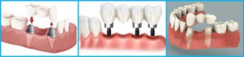 При частичной утрате зубов используются мостовидные протезы