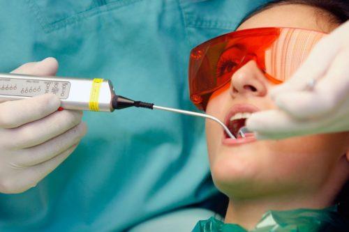 Лазерное лечение кариеса