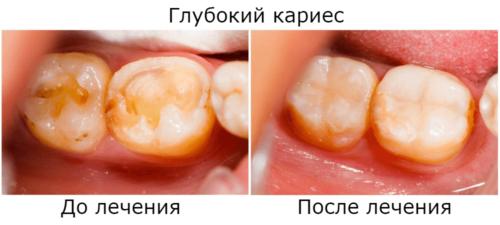 Лечение глубокого кариеса зубов