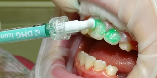 Лечение кариеса фронтальных зубов без бормашины