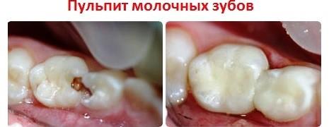 Лечение пульпита молочного зуба: фото до и после