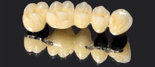 Коронки на опорные зубы выполнены из металла с керамическим покрытием