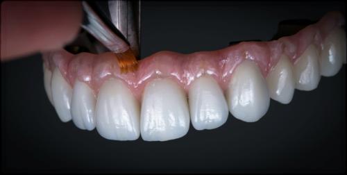 Съемные протезы с металлокерамикой используют при утрате большого числа зубов в ряду