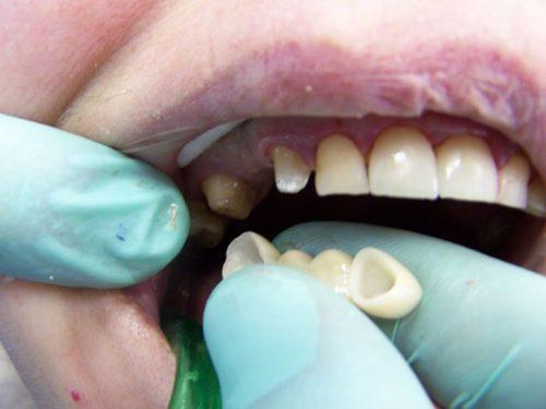 При установке мостовидных протезов опорные зубы обтачиваются