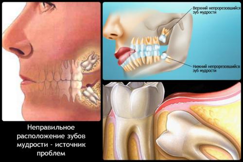 Показание для удаления: непрорезавшийся зуб мудрости