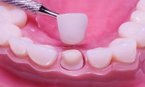 Несъемный протез позволяет заменить один или несколько отсутствующих зубов