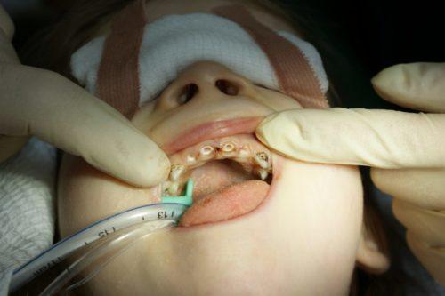 Общий наркоз позволяет пролечить все зубы