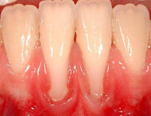 Оголение шейки зубов