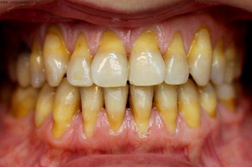 Оголение шейки зубов заметно визуально