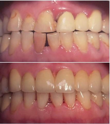 Фото зубов с периодонтитом до и после лечения