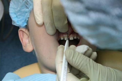 Без пластики уздечки губы развивается диастема, ухудшается прикус