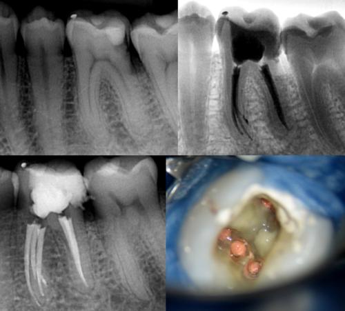 После пломбирования каналов обязателен контрольный рентген