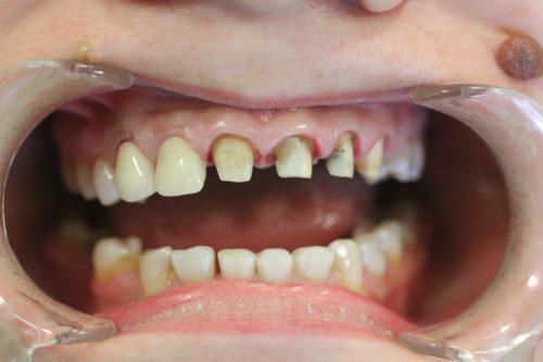 Передние зубы обтачиваются перед установкой коронок или мостовидных протезов