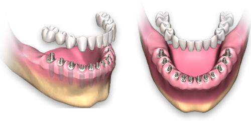 Полное протезирование зубов имплантами при тотальной адентии