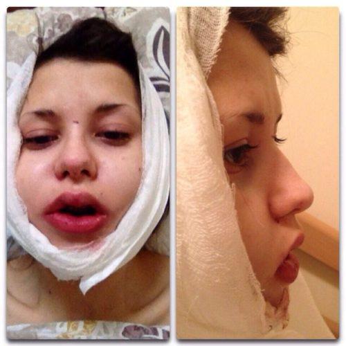 Повязка после ортогнатической операции