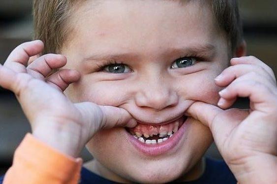 Причины детского периодонтита: кариес, травмы, медикаменты