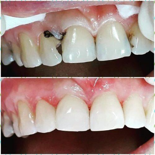 Пришеечный кариес фронтальных зубов